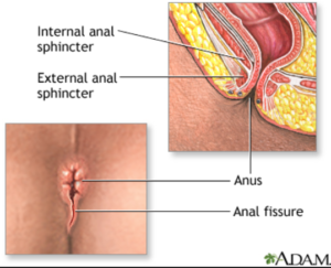 Medical illustration of Anal Fissure